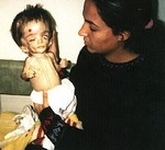 iraqi-child-victim-of-depleted-uranium.jpg