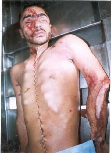 Israël trafic d'organes corps à la morgue.jpg