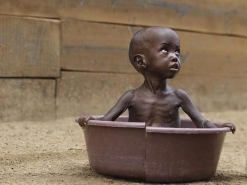 somalie-famine-afrique-secheresse-islamistes.jpg